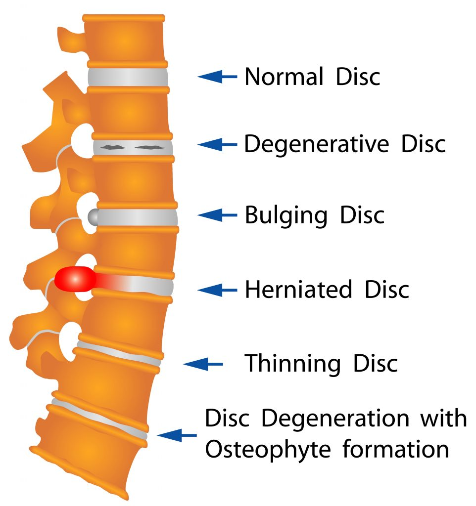 Healthy spine vs problems